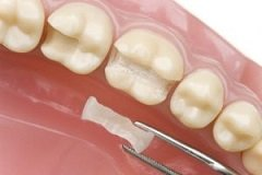 Ultimately Resulting In Healthier Gums And Less Food Impaction