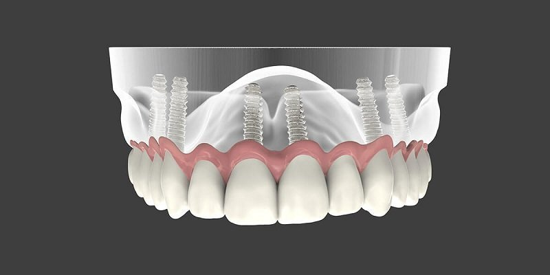 Full Mouth Reconstruction – What Are My Options?