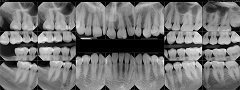 Dental Digital X-Ray Vs. Panoramic X-Ray