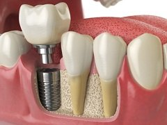 The Option Of Having Dental Implants Professionally Cleaned