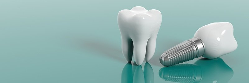 Learn More About Dental Implant Aftercare
