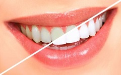 Brushing and Flossing Helps to Keep Teeth Clean and Reduces Staining