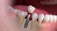 When Do I Need A Dental Implant